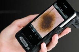 El iPhone, para la detección del cáncer de piel