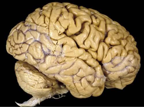 Los antipsicóticos pueden reducir el tamaño del cerebro