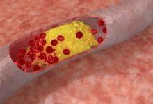 Photo of Medicamentos contra el colesterol reducen también la placa arterial