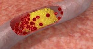 Medicamentos contra el colesterol reducen también la placa arterial