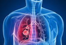 Programa de autocontrol para pacientes con EPOC mejora su calidad de vida