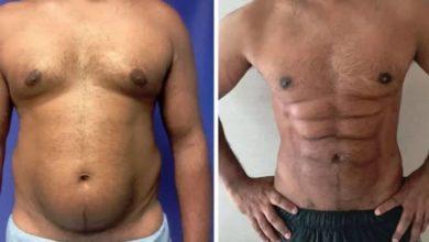 Cirugía plástica para convertir la grasa del vientre en una singular tableta
