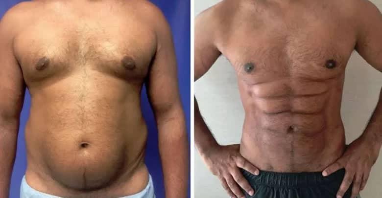 Photo of Cirugía plástica para convertir la grasa del vientre en una singular tableta