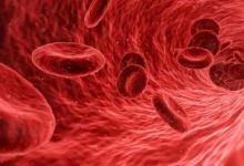 Photo of Un nanofármaco para acabar con los infartos