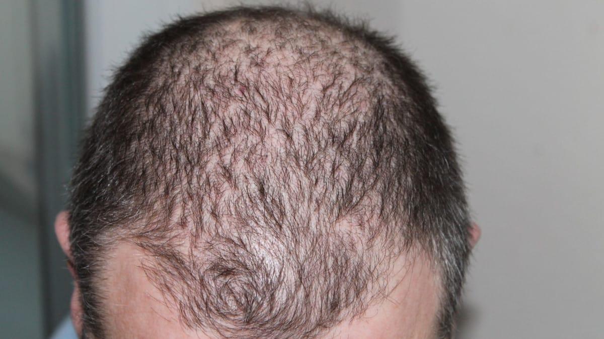 El Teléfono del Pelazo, la campaña de Svenson para prevenir la caída del cabello